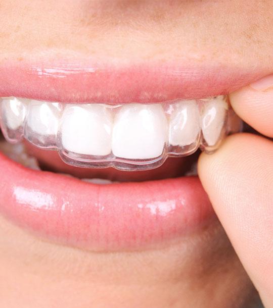Invisalign für gerade Zähne
